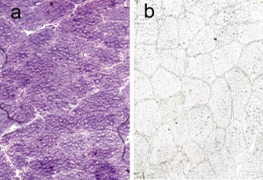 Chronic Non-Exertional Myalgia and Myoadenylate Deaminase Deficiency: a Possible Association