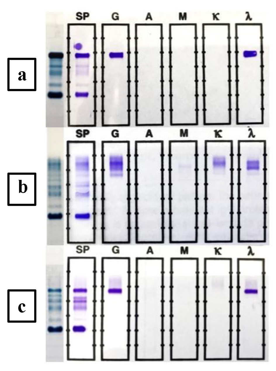 Oligoclonal Pattern Abnormal Protein Bands In Post